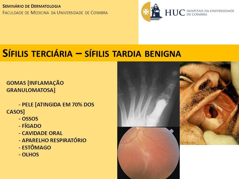 Sífilis terciária – sífilis tardia benigna
