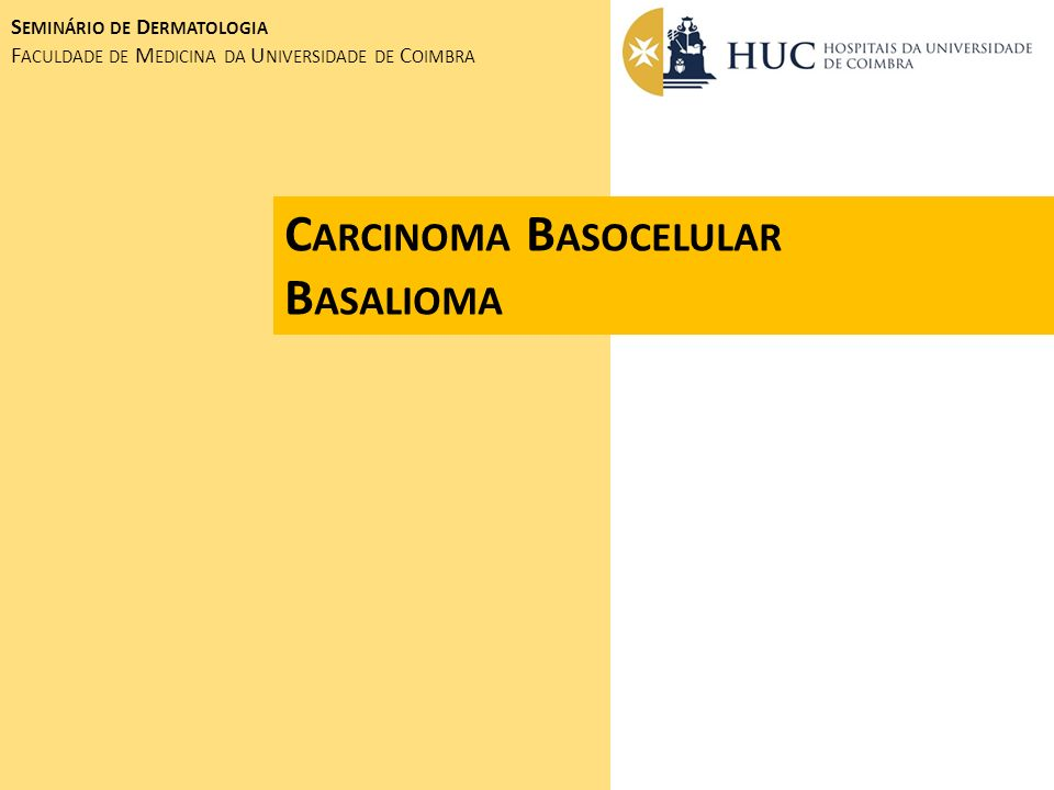 Carcinoma Basocelular Basalioma