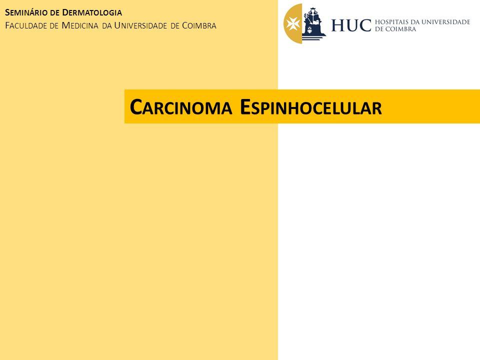 Carcinoma Espinhocelular