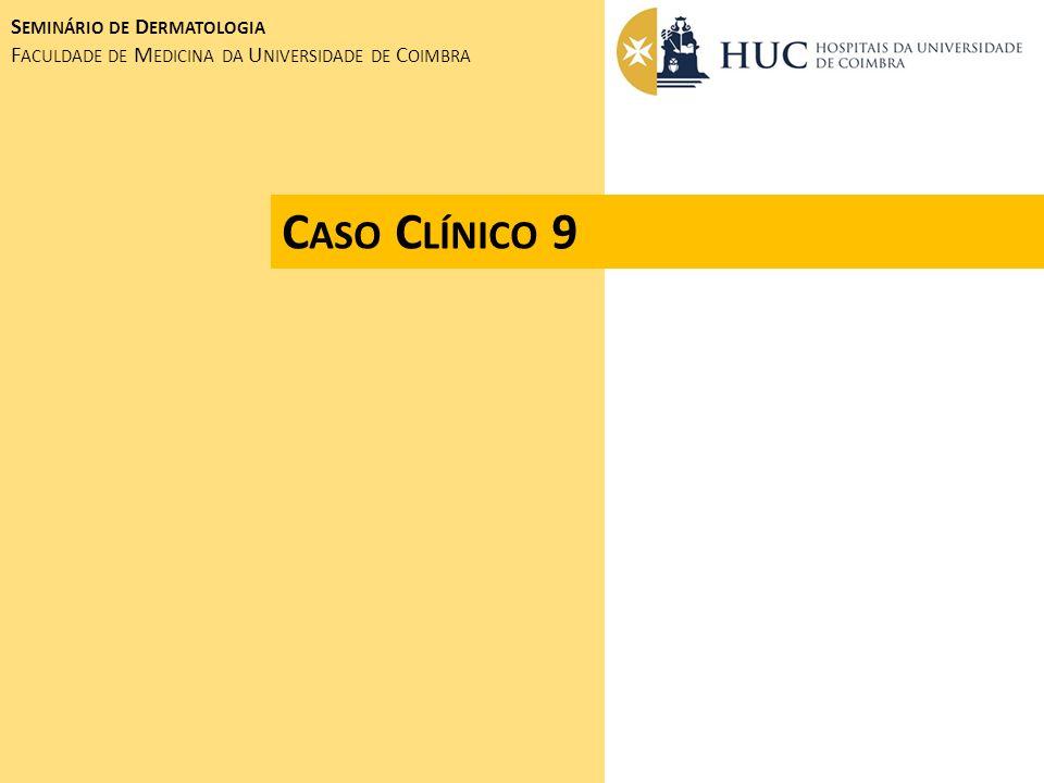 Caso Clínico 9 Seminário de Dermatologia