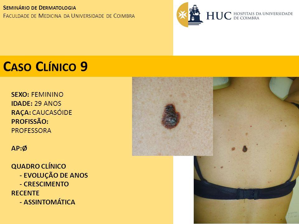 Caso Clínico 9 SEXO: FEMININO IDADE: 29 ANOS RAÇA: CAUCASÓIDE