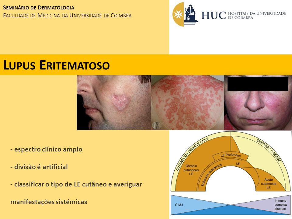 Lupus Eritematoso - espectro clínico amplo - divisão é artificial