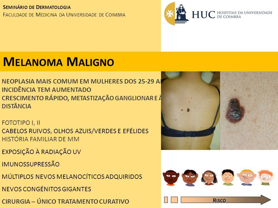 Melanoma Maligno NEOPLASIA MAIS COMUM EM MULHERES DOS 25-29 ANOS