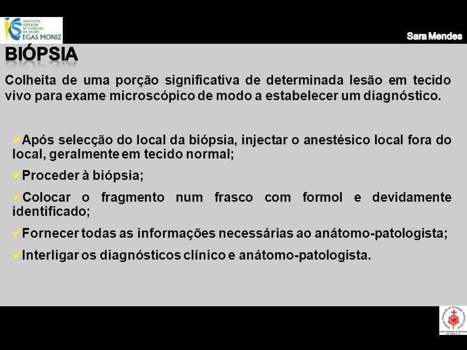 Sara Mendes Biópsia.