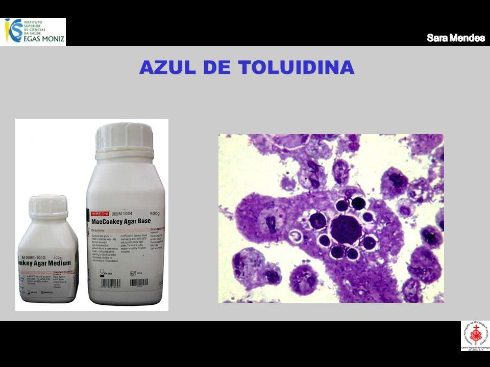 Sara Mendes AZUL DE TOLUIDINA