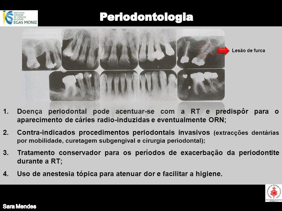 Sara Mendes Periodontologia. Lesão de furca.