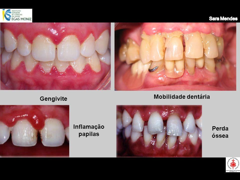 Mobilidade dentária Gengivite Inflamação papilas Perda óssea