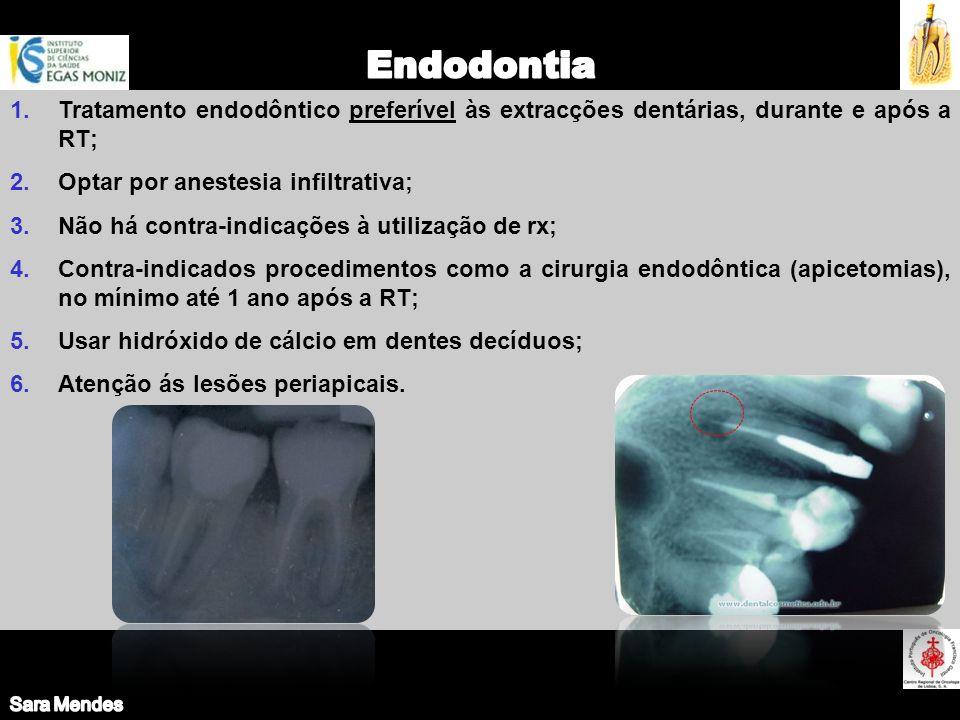 Sara Mendes Endodontia. Tratamento endodôntico preferível às extracções dentárias, durante e após a RT;