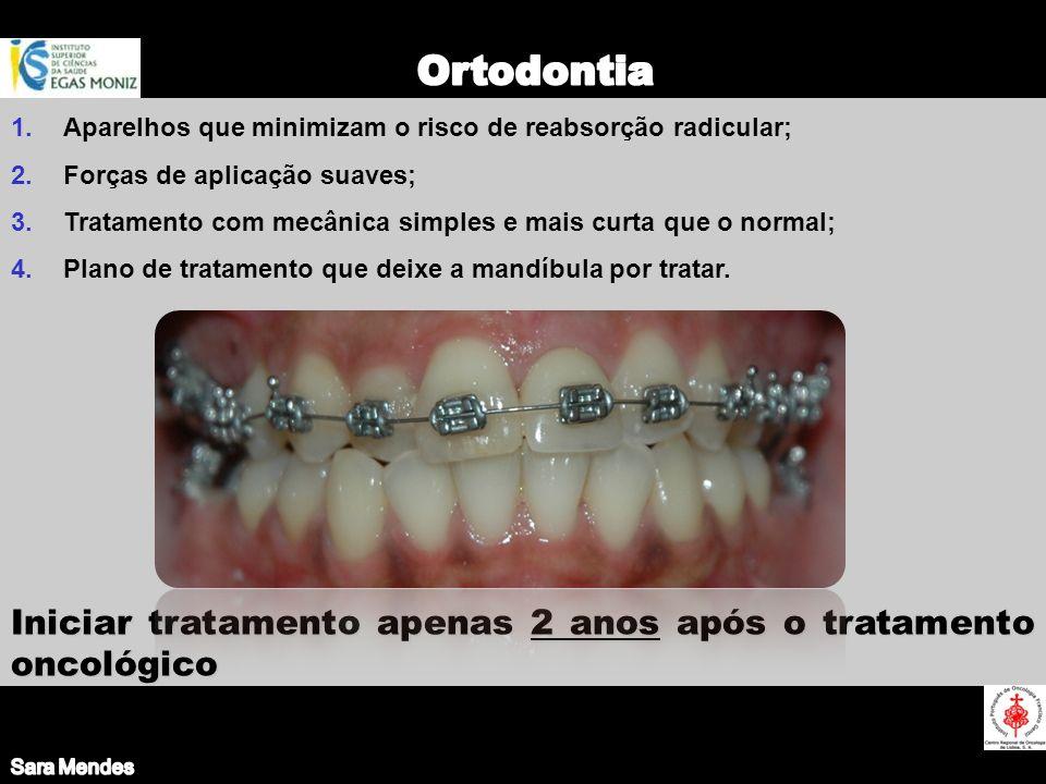 Sara Mendes Ortodontia. Aparelhos que minimizam o risco de reabsorção radicular; Forças de aplicação suaves;