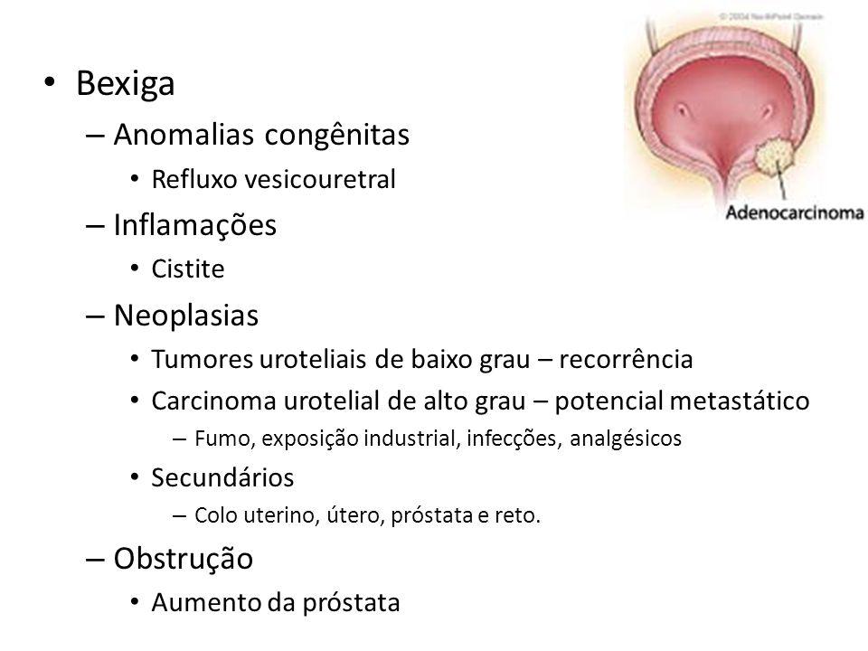 Bexiga Anomalias congênitas Inflamações Neoplasias Obstrução
