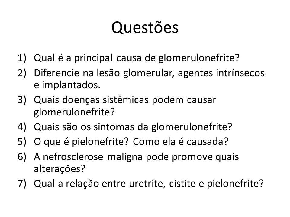 Questões Qual é a principal causa de glomerulonefrite