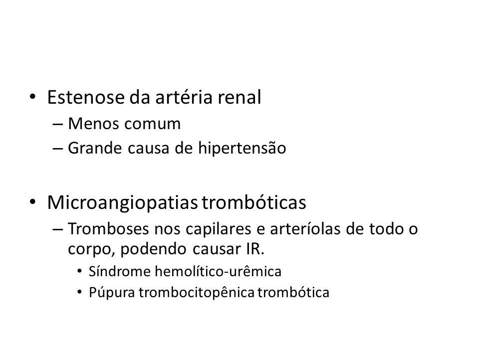 Estenose da artéria renal