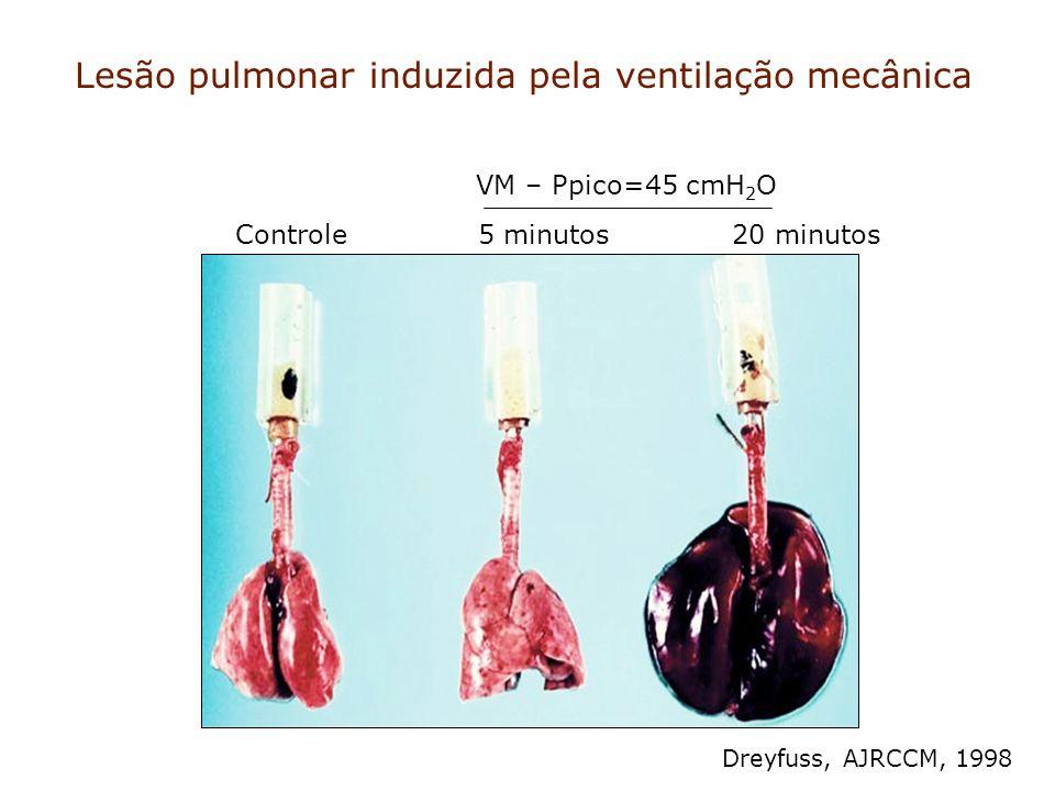 Lesão pulmonar induzida pela ventilação mecânica