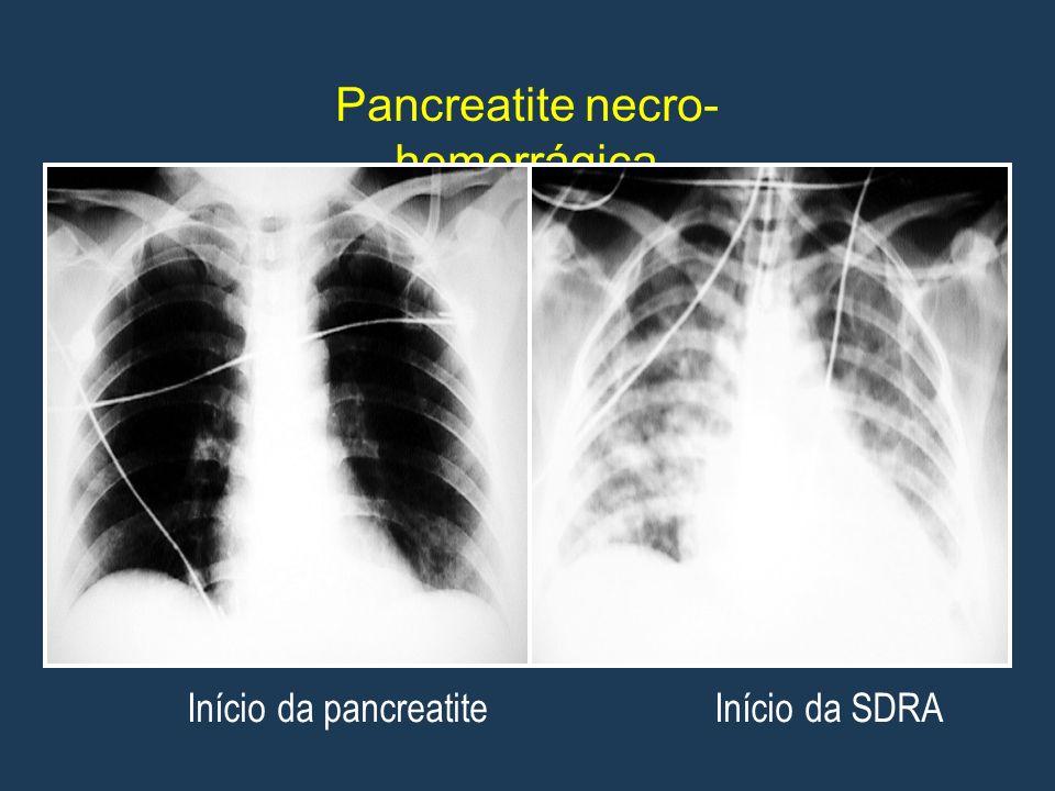 Pancreatite necro-hemorrágica