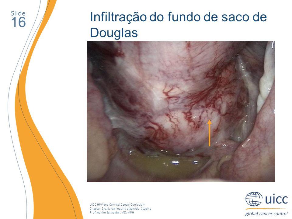 16 Infiltração do fundo de saco de Douglas Slide