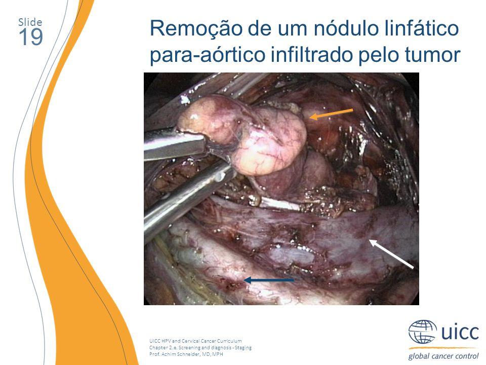 19 Remoção de um nódulo linfático para-aórtico infiltrado pelo tumor