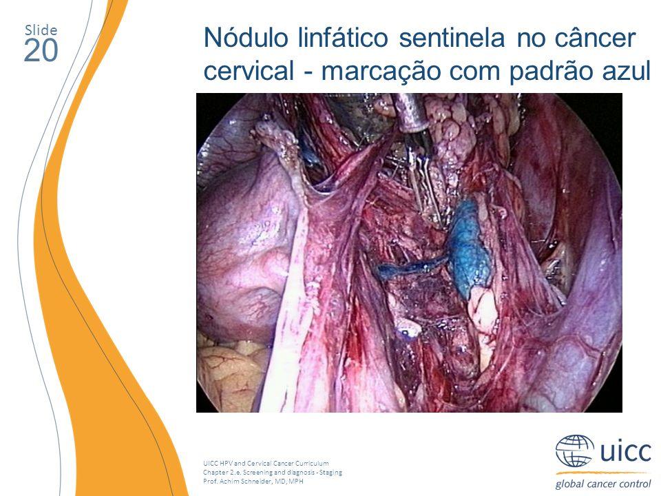 Slide Nódulo linfático sentinela no câncer cervical - marcação com padrão azul. 20.