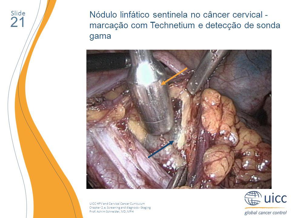 Slide Nódulo linfático sentinela no câncer cervical - marcação com Technetium e detecção de sonda gama.