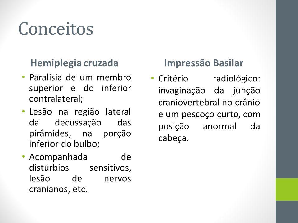 Conceitos Hemiplegia cruzada Impressão Basilar