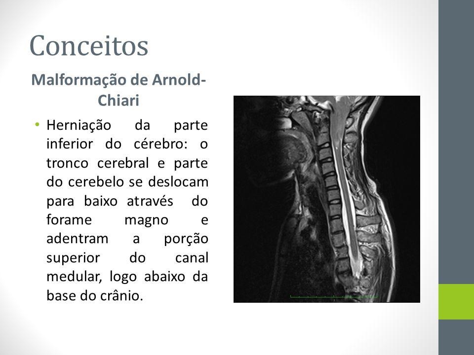 Malformação de Arnold-Chiari