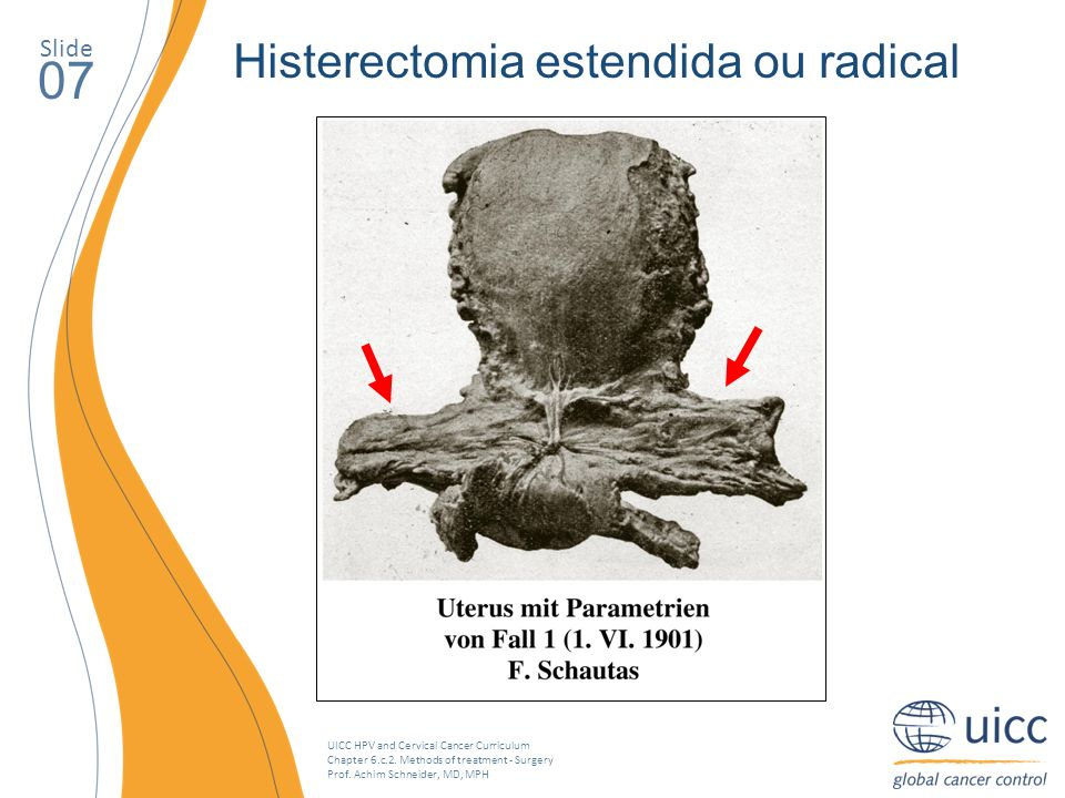 07 Histerectomia estendida ou radical Slide