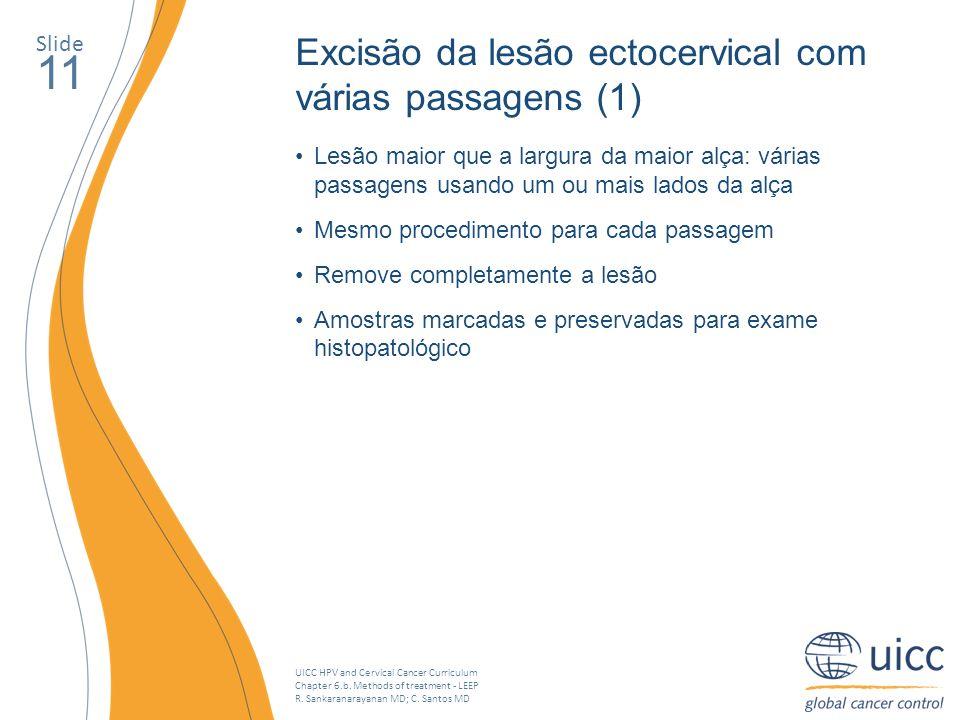 11 Excisão da lesão ectocervical com várias passagens (1) Slide