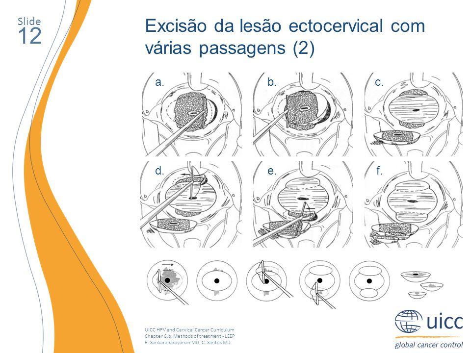 12 Excisão da lesão ectocervical com várias passagens (2) Slide a. b.