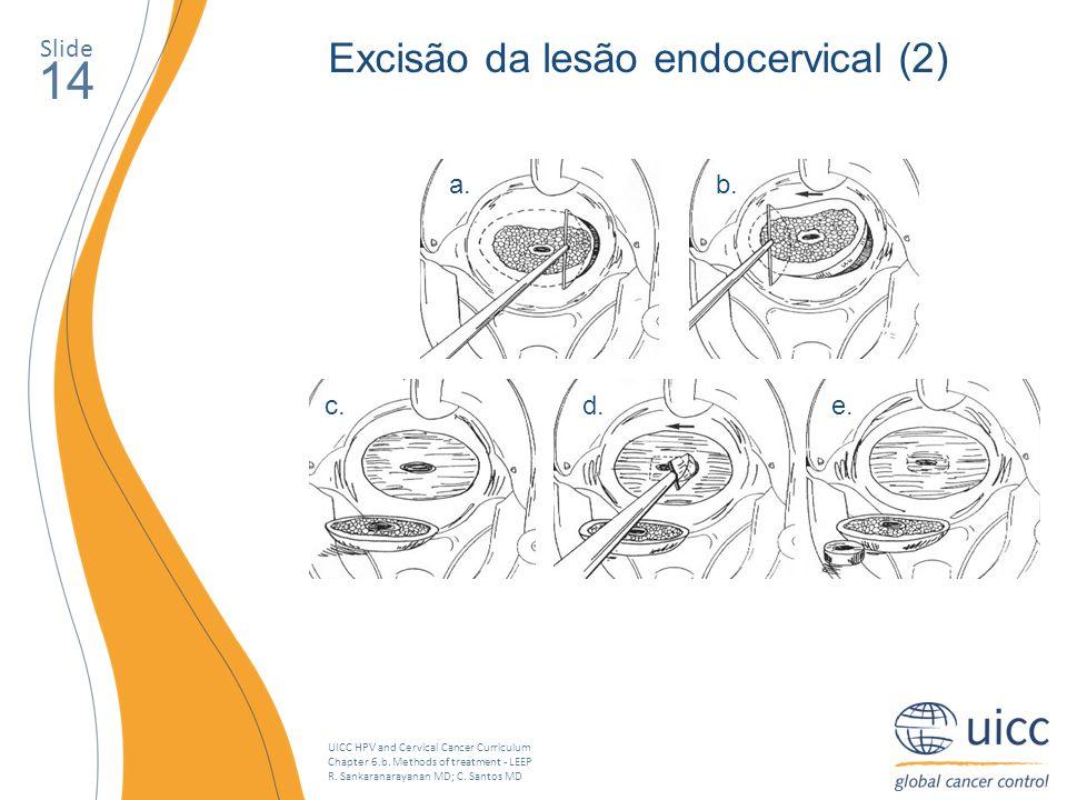 14 Excisão da lesão endocervical (2) Slide a. b. c. d. e.