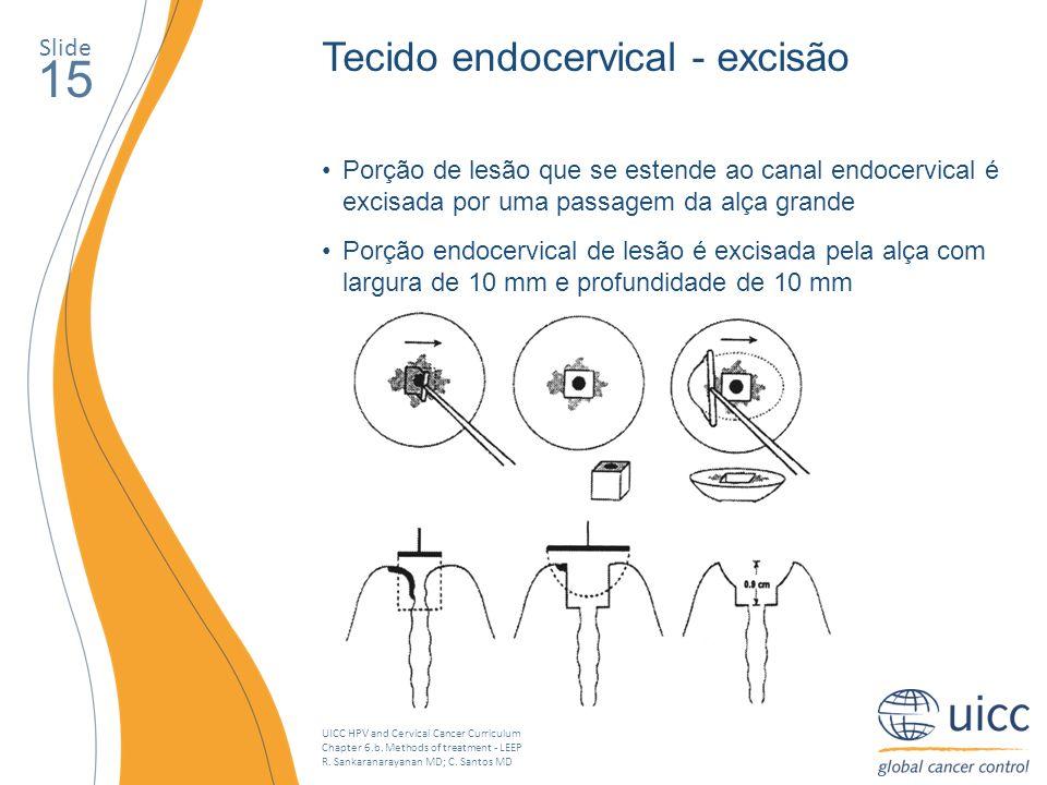 15 Tecido endocervical - excisão Slide