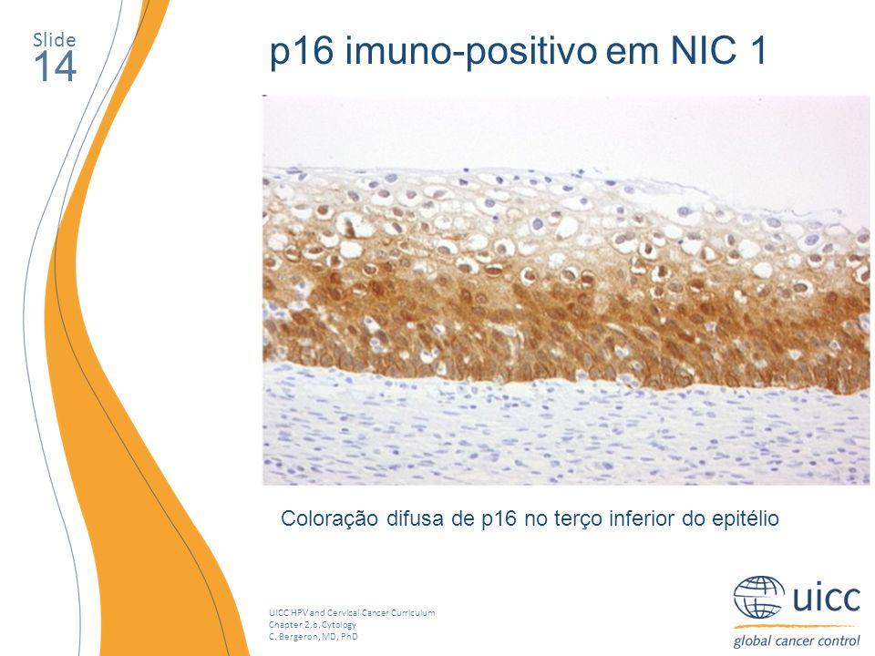 14 p16 imuno-positivo em NIC 1 Slide