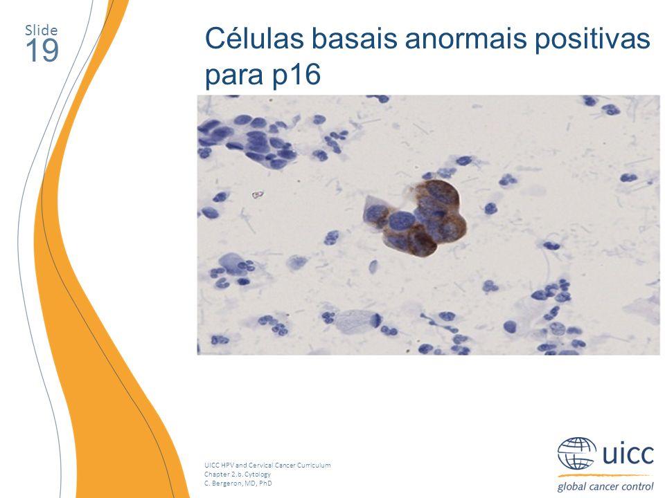 19 Células basais anormais positivas para p16 Slide