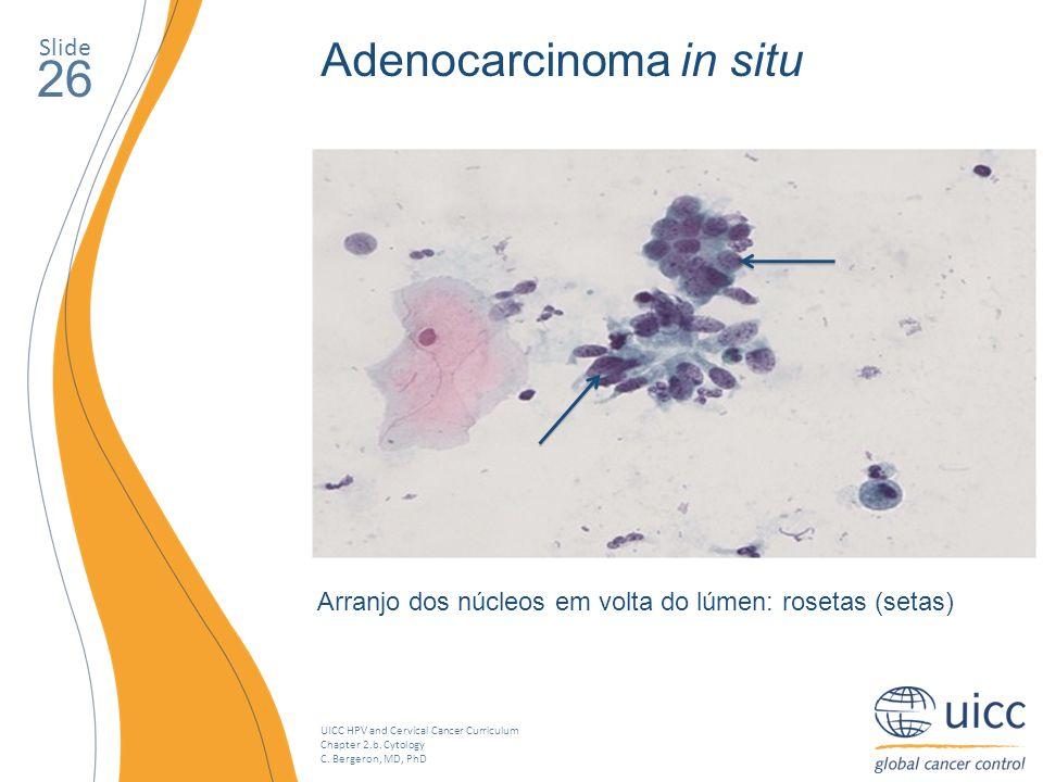 26 Adenocarcinoma in situ Slide
