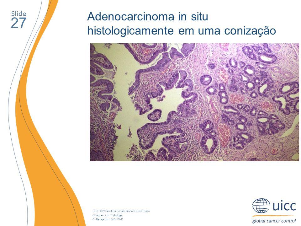 27 Adenocarcinoma in situ histologicamente em uma conização Slide