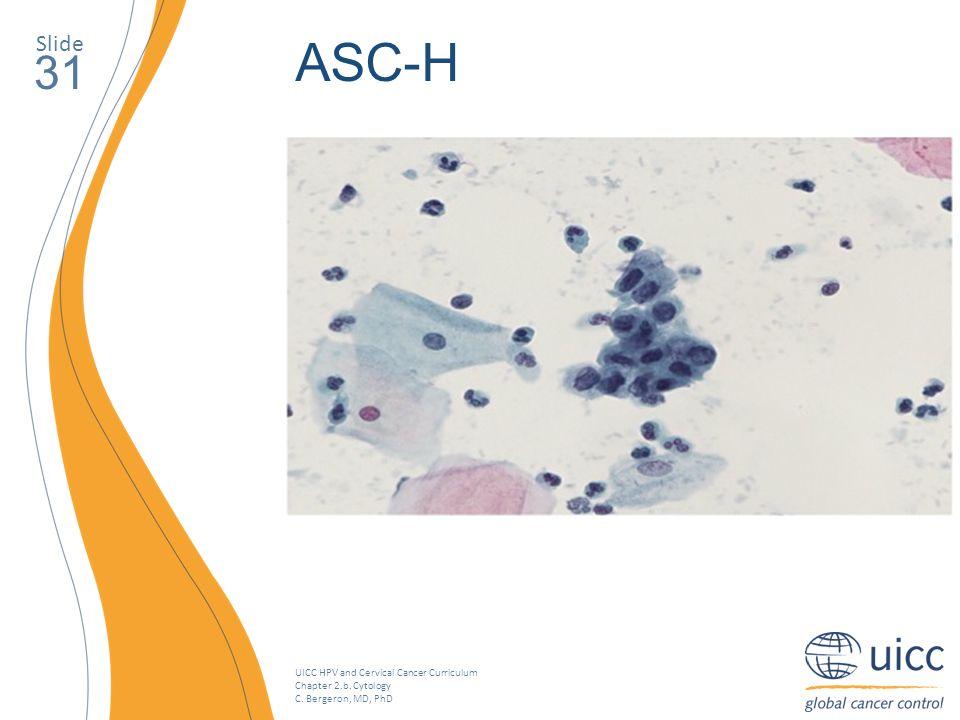 Slide ASC-H. 31. Este é um exemplo de ASC-H. As células basais contêm uma razão núcleo citoplasma aumentada.