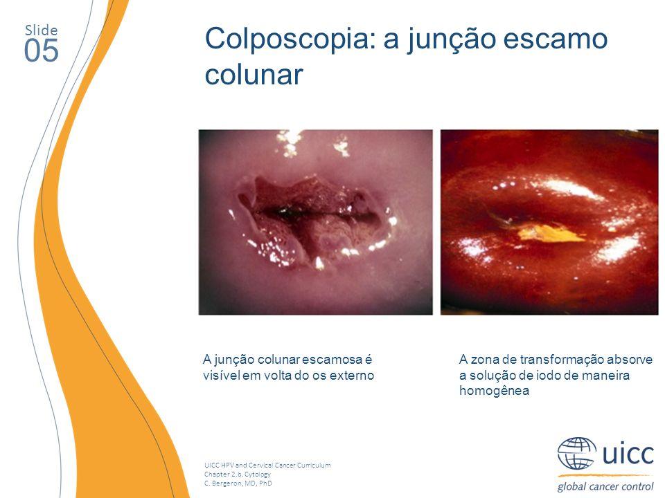 05 Colposcopia: a junção escamo colunar Slide