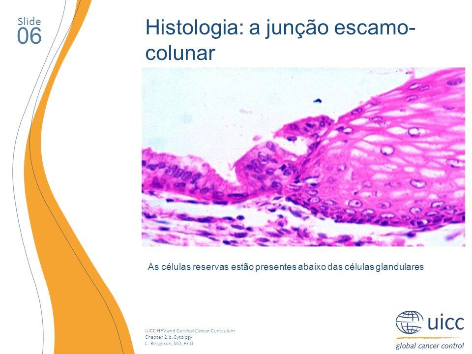 06 Histologia: a junção escamo-colunar Slide