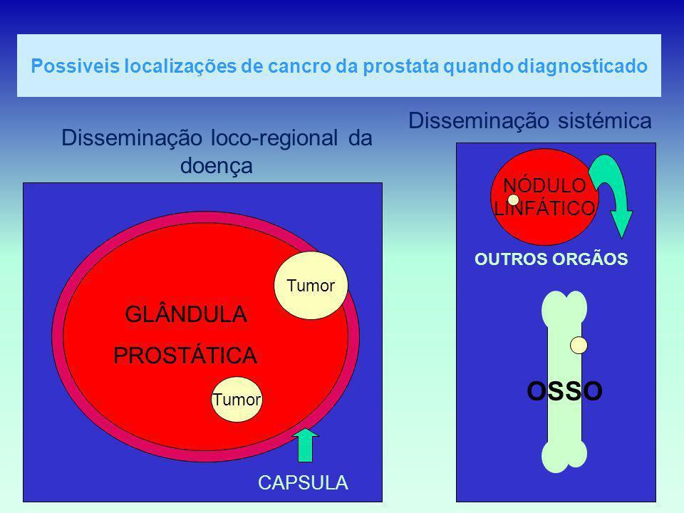 Possiveis localizações de cancro da prostata quando diagnosticado