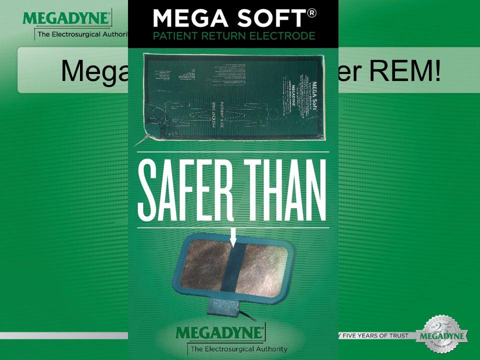 Megadyne's claim over REM!