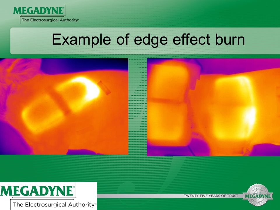 Example of edge effect burn