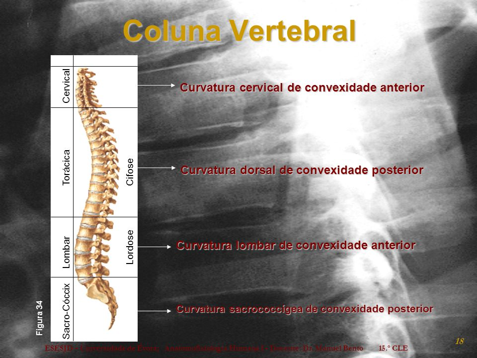 Coluna Vertebral Curvatura cervical de convexidade anterior