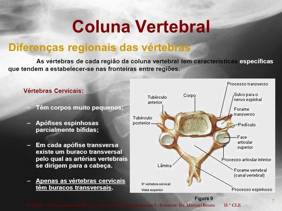 Coluna Vertebral Diferenças regionais das vértebras