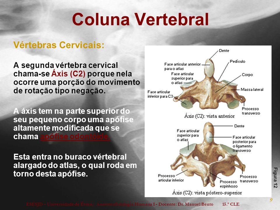 Coluna Vertebral Vértebras Cervicais: