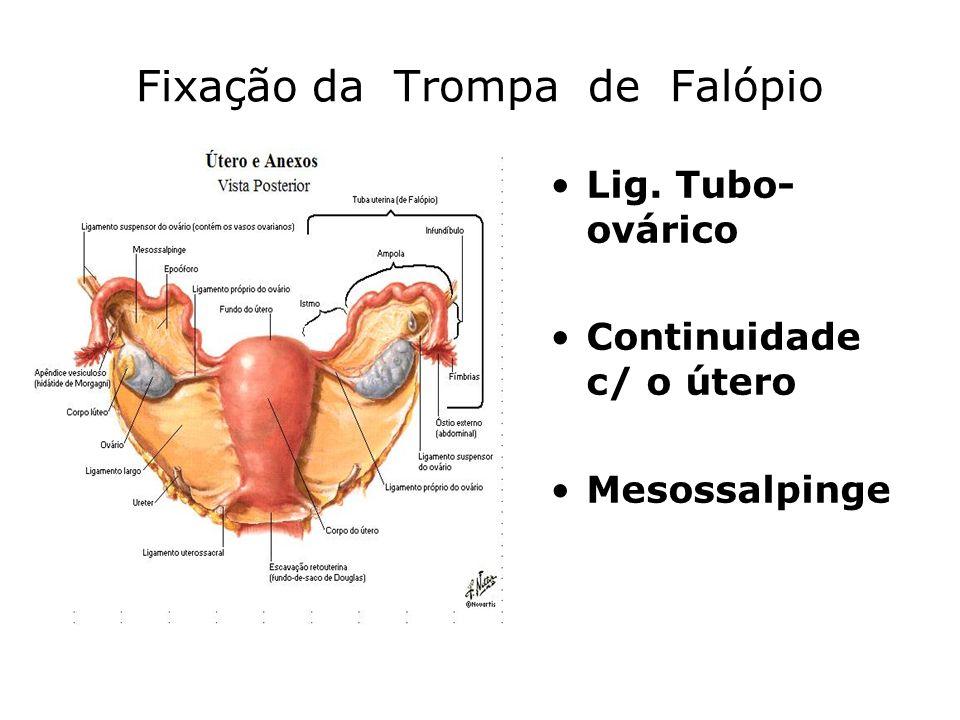 Fixação da Trompa de Falópio