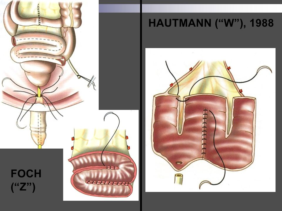 HAUTMANN ( W ), 1988 FOCH ( Z )