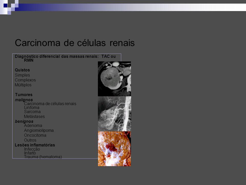 Carcinoma de células renais