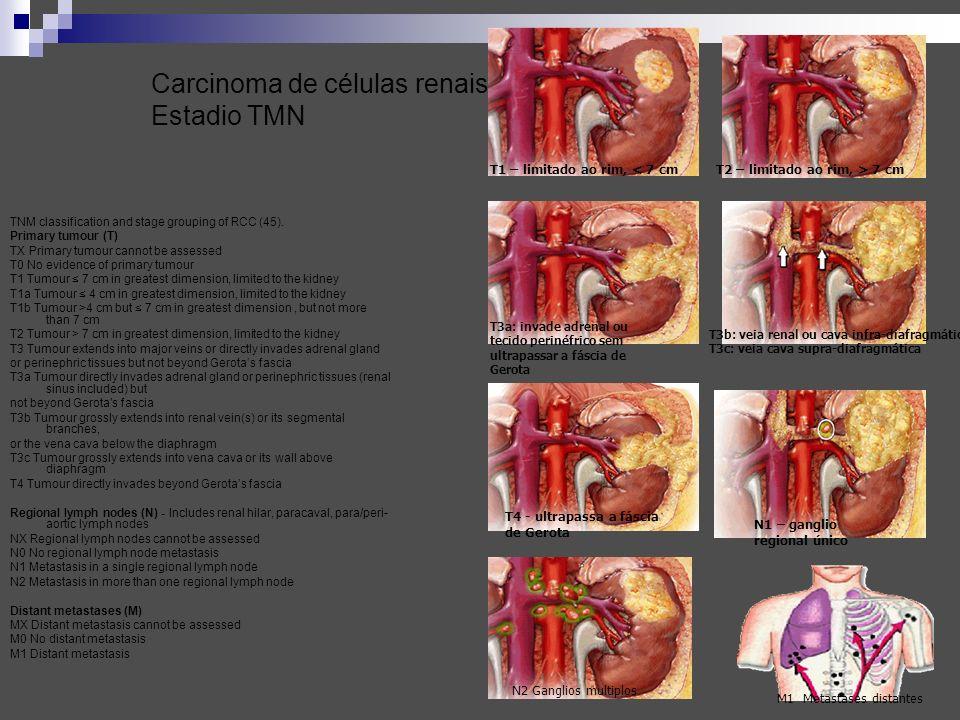 Carcinoma de células renais Estadio TMN