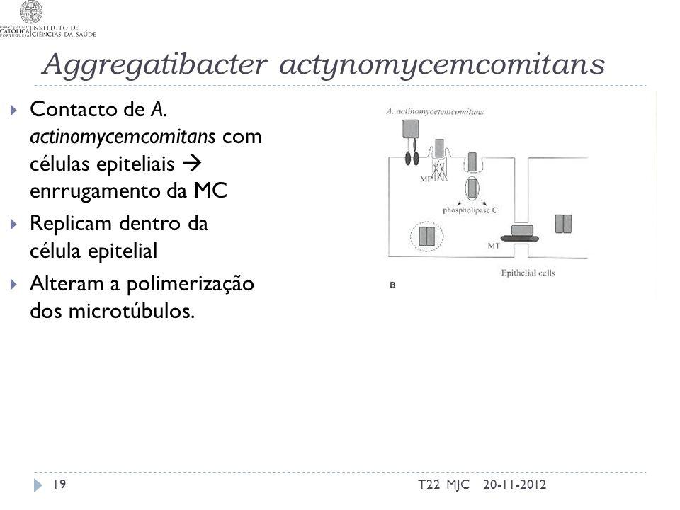 Aggregatibacter actynomycemcomitans