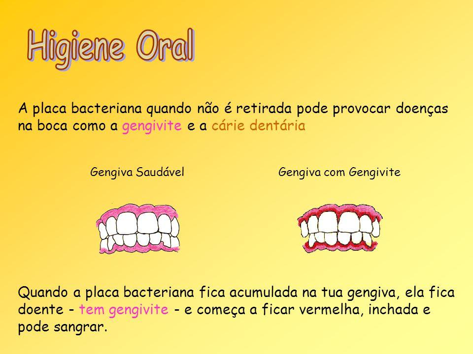 Higiene Oral A placa bacteriana quando não é retirada pode provocar doenças na boca como a gengivite e a cárie dentária.