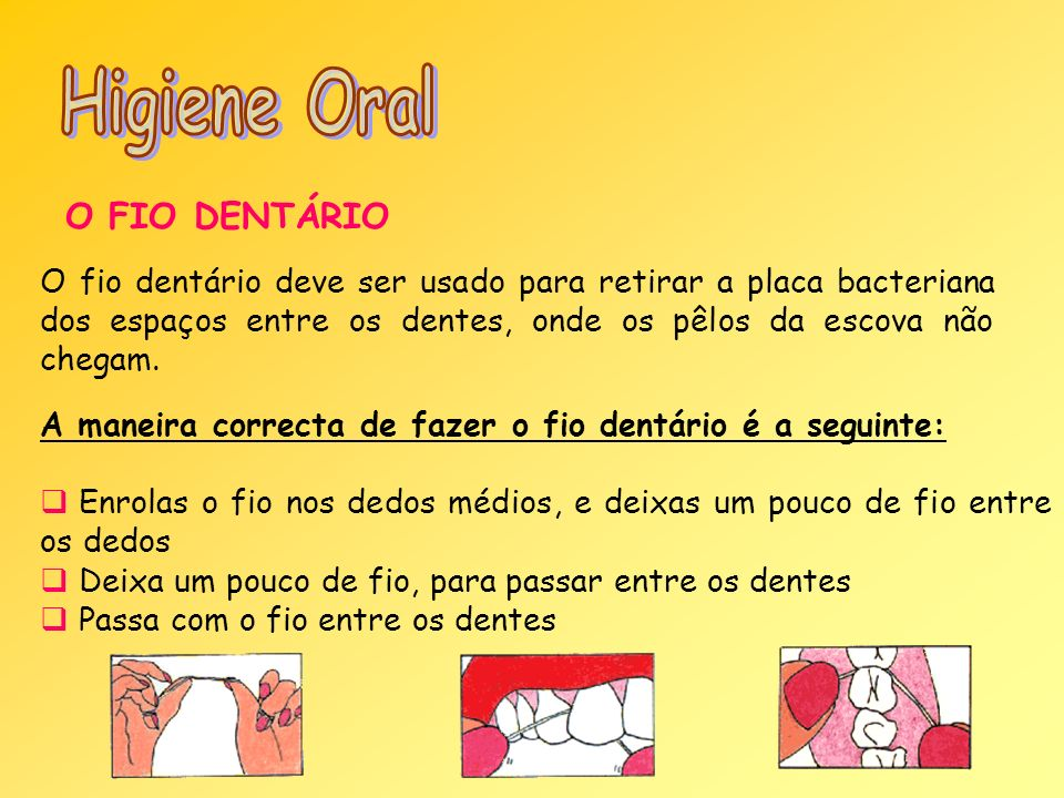 Higiene Oral O FIO DENTÁRIO