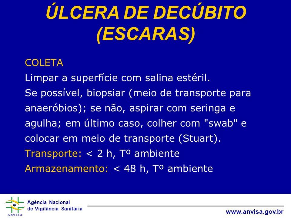 ÚLCERA DE DECÚBITO (ESCARAS)